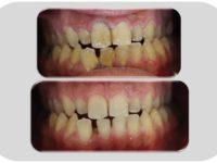 Diş Hastalıkları Tedavisi